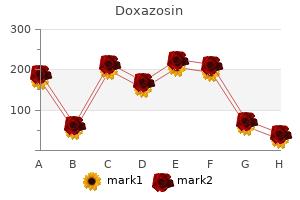 cheap doxazosin 4mg on-line